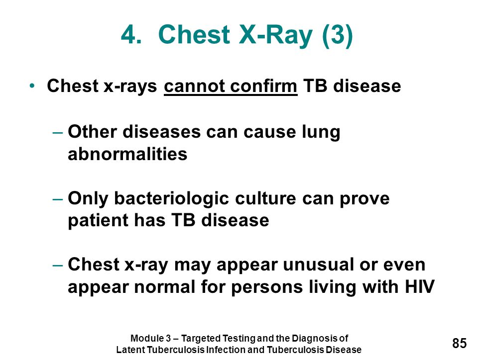 4. Chest X-Ray (3) Chest x-rays cannot confirm TB disease