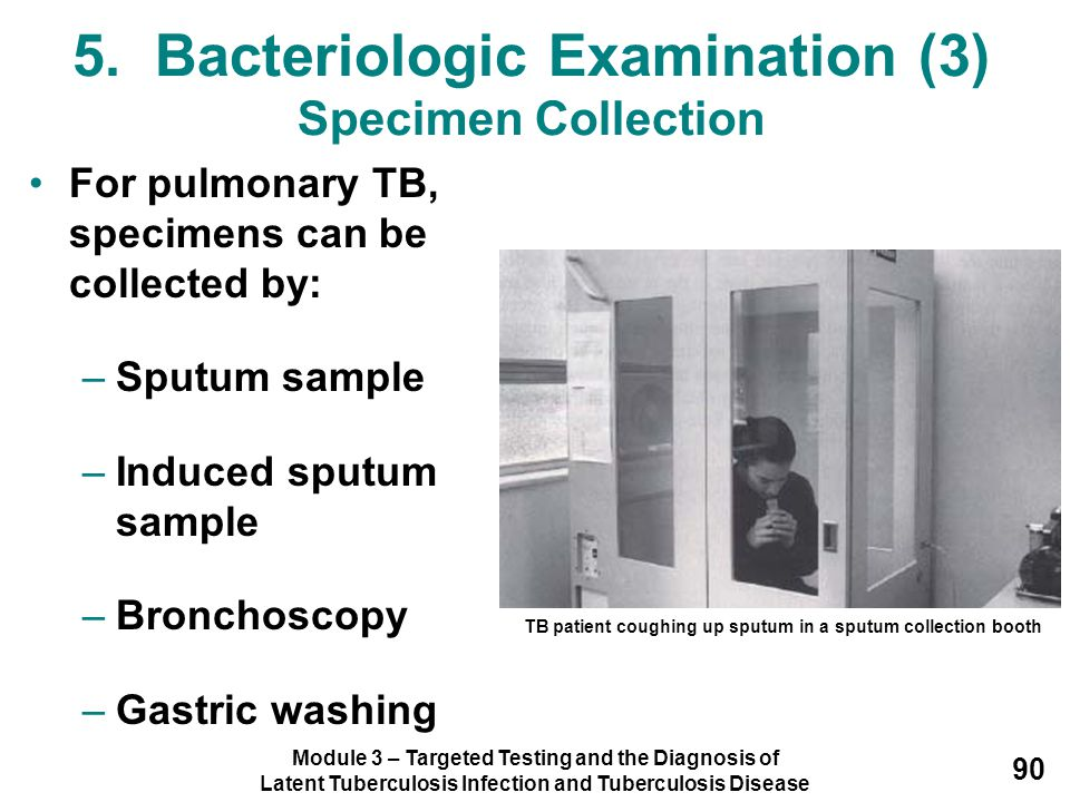 5. Bacteriologic Examination (3) Specimen Collection