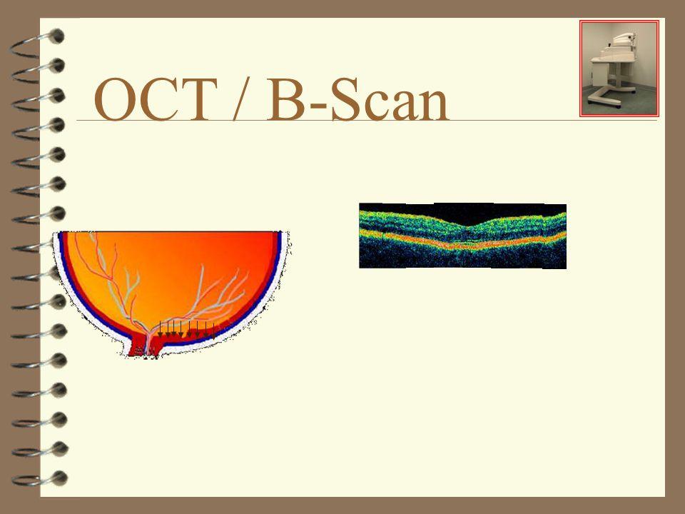 OCT / B-Scan