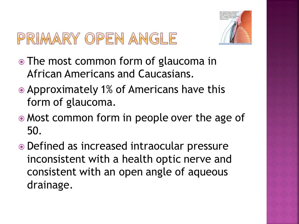 Primary open Angle The most common form of glaucoma in African Americans and Caucasians. Approximately 1% of Americans have this form of glaucoma.