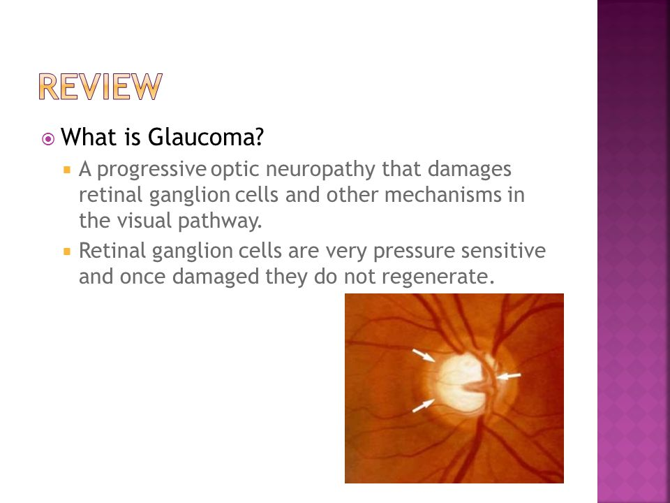 Review What is Glaucoma