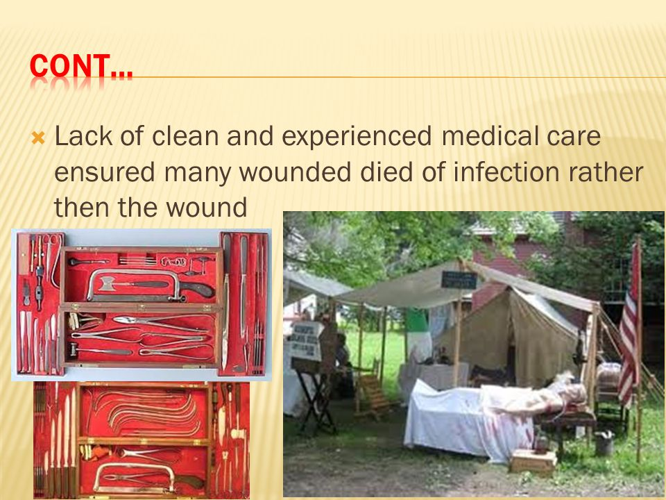 Cont… Lack of clean and experienced medical care ensured many wounded died of infection rather then the wound.