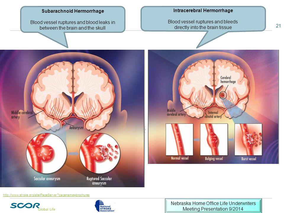 Subarachnoid Hermorrhage Intracerebral Hermorrhage