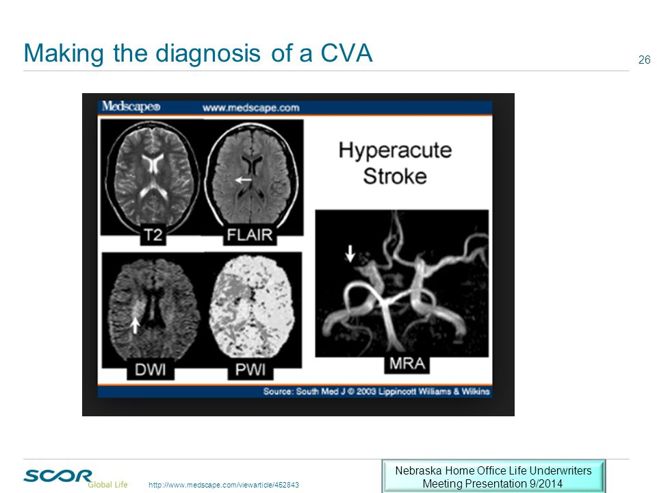 Making the diagnosis of a CVA