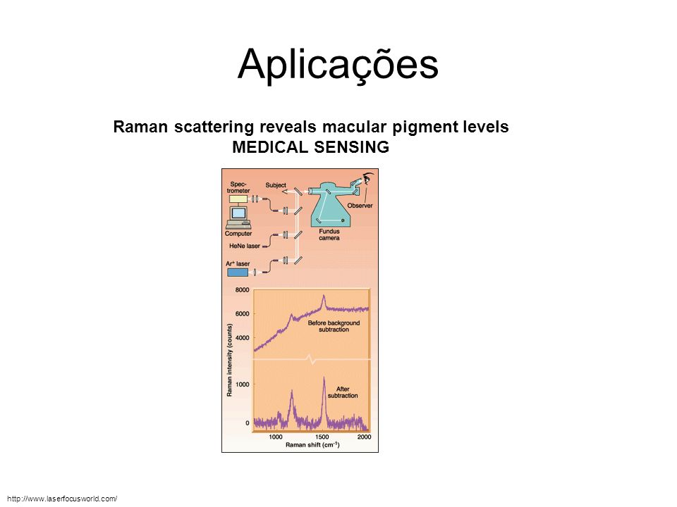 Raman scattering reveals macular pigment levels