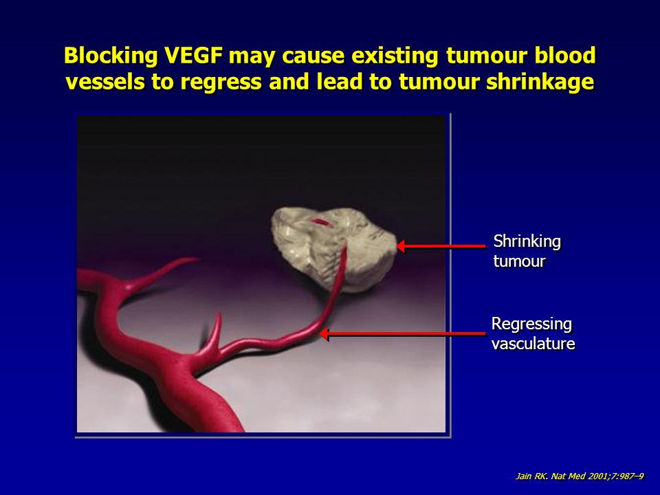 Blocking VEGF may cause existing tumour blood vessels to regress and lead to tumour shrinkage