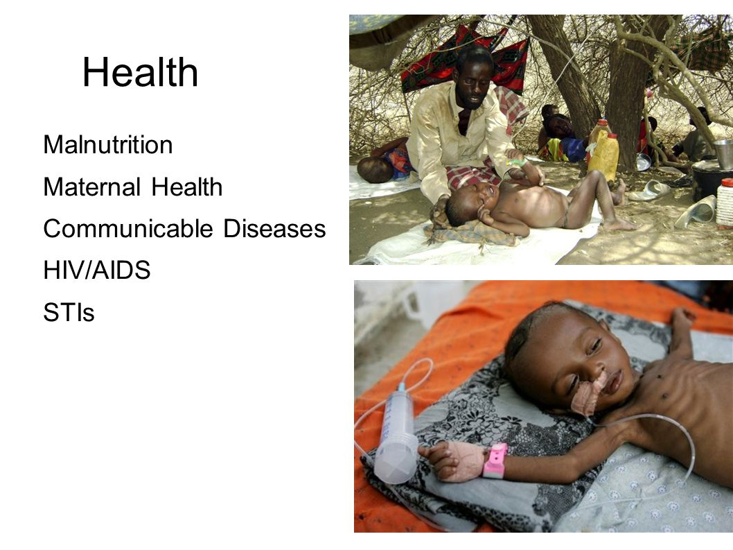 Health Malnutrition Maternal Health Communicable Diseases HIV/AIDS STIs Malnutrition. 20% of children get food and medicine necessary for survival.