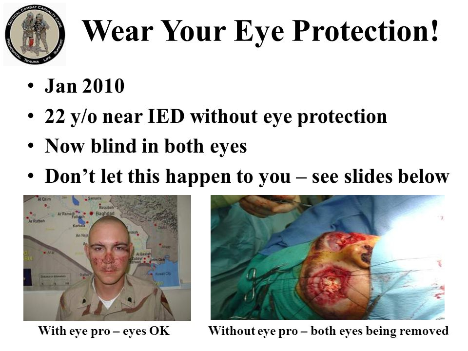 Wear Your Eye Protection!