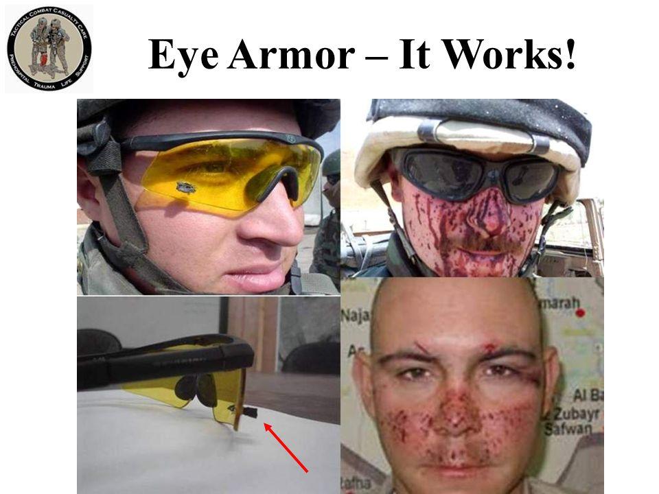 Eye Armor – It Works! On left – large shrapnel fragment stopped by eye armor.