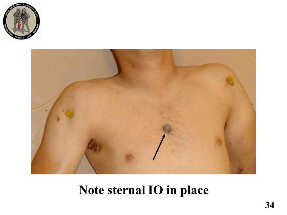 Note sternal IO in place