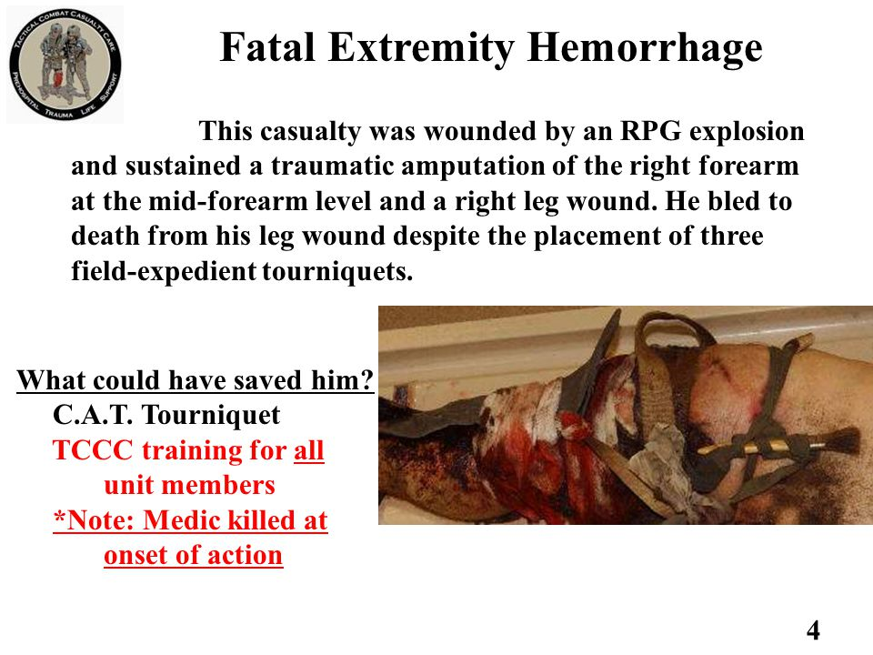 Fatal Extremity Hemorrhage