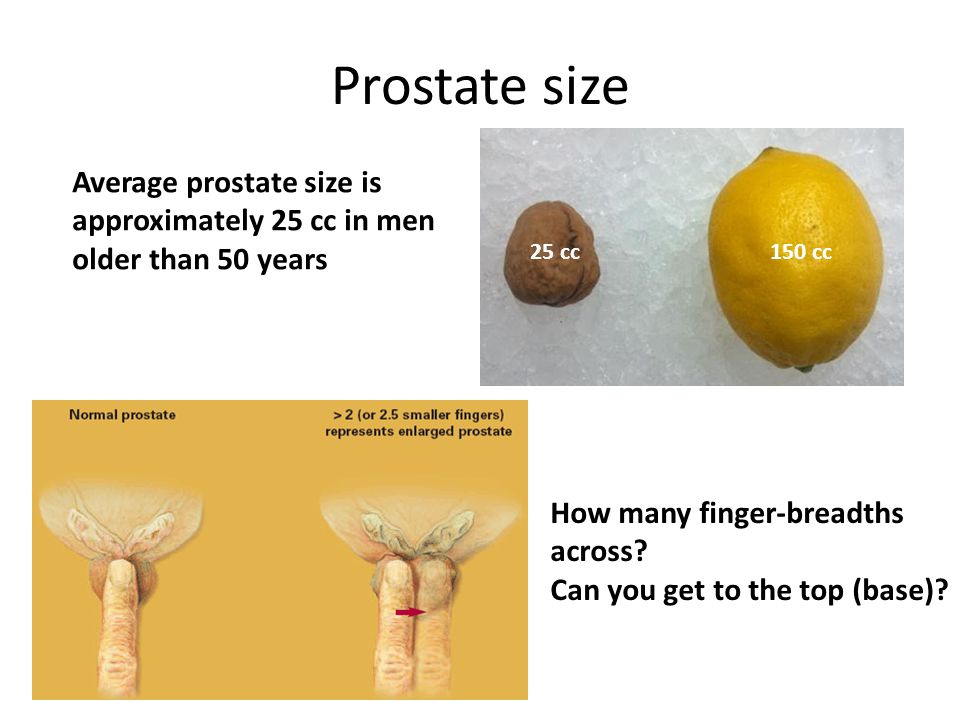 Prostate size Average prostate size is approximately 25 cc in men
