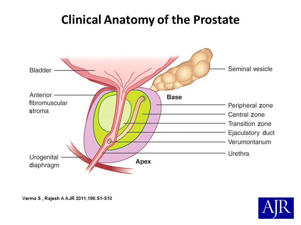 Clinical Anatomy of the Prostate