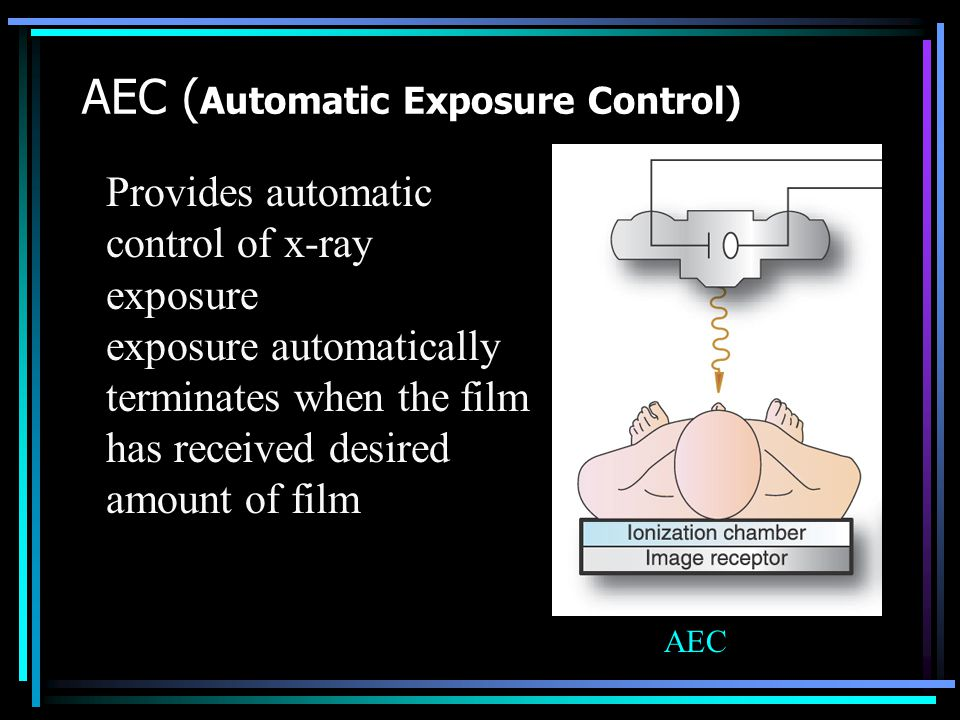 AEC (Automatic Exposure Control)