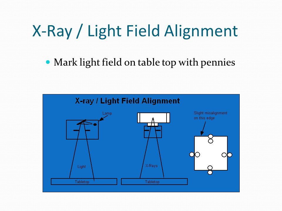 X-Ray / Light Field Alignment