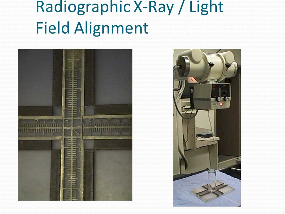 Radiographic X-Ray / Light Field Alignment
