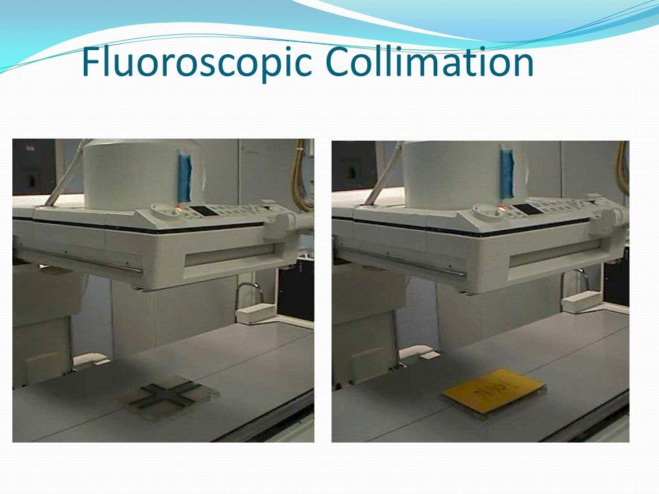 Fluoroscopic Collimation