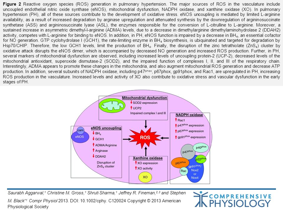 Figure 2 Reactive oxygen species (ROS) generation in pulmonary hypertension. The major sources of ROS in the vasculature include uncoupled endothelial nitric oxide synthase (eNOS), mitochondrial dysfunction, NADPH oxidase, and xanthine oxidase (XO). In pulmonary hypertension (PH), all of these sources contribute to the development of oxidative stress. eNOS uncoupling is mediated by limited L-arginine availability, as a result of increased degradation by arginase upregulation and attenuated synthesis by the downregulation of argininosuccinate synthetase (ASS) and argininosuccinate lyase (ASL), the enzymes responsible for the conversion of L-citrulline to L-arginine. Moreover, a sustained increase in asymmetric dimethyl-l-arginine (ADMA) levels, due to a decrease in dimethylarginine dimethylaminohydrolase 2 (DDAH2) activity, competes with L-arginine for binding to eNOS. In addition, in PH, eNOS function is impaired by a decrease in BH4, an essential cofactor for NO generation. GTP cyclohydrolase I (GCH1), the rate-limiting enzyme in BH4 biosynthesis, is ubiquinated and targeted for degradation by Hsp70/CHIP. Therefore, the low GCH1 levels, limit the production of BH4. Finally, the disruption of the zinc tetrathiolate (ZnS4) cluster by oxidative attack disrupts the eNOS dimer, which is accompanied by decreased NO generation and increased ROS production. Further, in PH, several markers of mitochondrial dysfunction are observed, including increased levels of uncoupling protein-2 (UCP-2), decreased levels of the mitochondrial antioxidant, superoxide dismutase-2 (SOD2), and the impaired function of complexes I, II, and III of the respiratory chain. Interestingly, ADMA appears to promote these changes in the mitochondria, and also augment mitochondrial ROS generation and decrease ATP production. In addition, several subunits of NADPH oxidase, including p47phox, p67phox, gp91phox, and Rac1, are upregulated in PH, increasing ROS production in the vasculature. Increased levels and activity of XO also contribute to oxidative stress and vascular dysfunction in the early stages of PH.