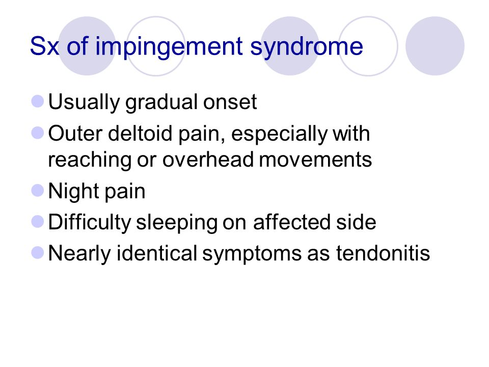 Sx of impingement syndrome