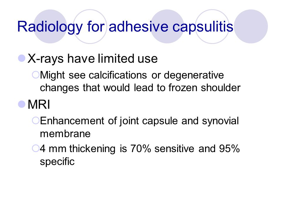 Radiology for adhesive capsulitis
