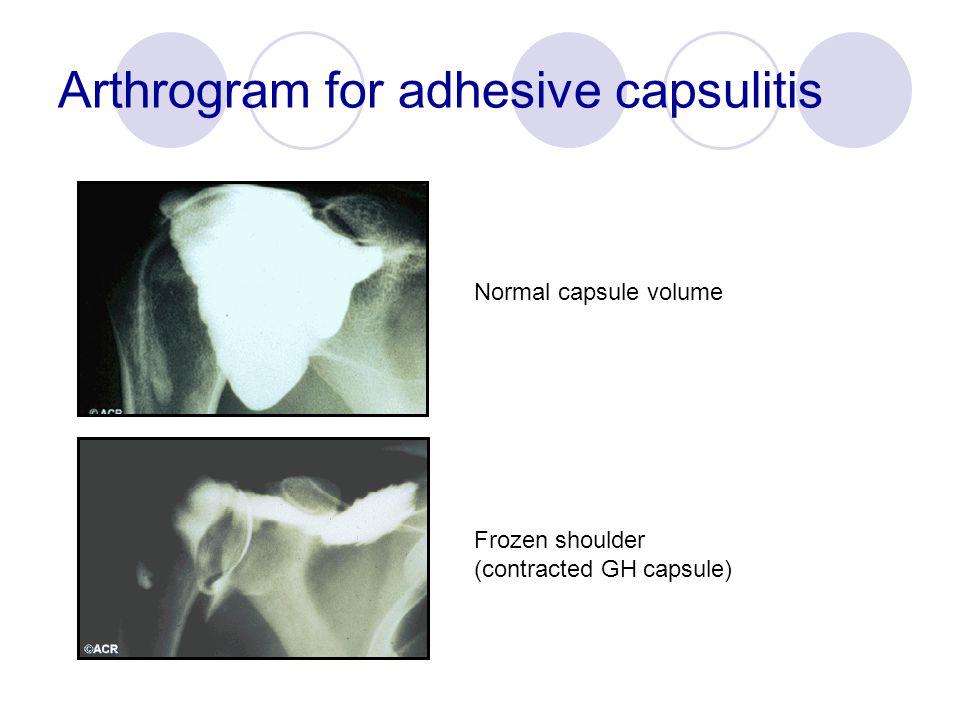 Arthrogram for adhesive capsulitis