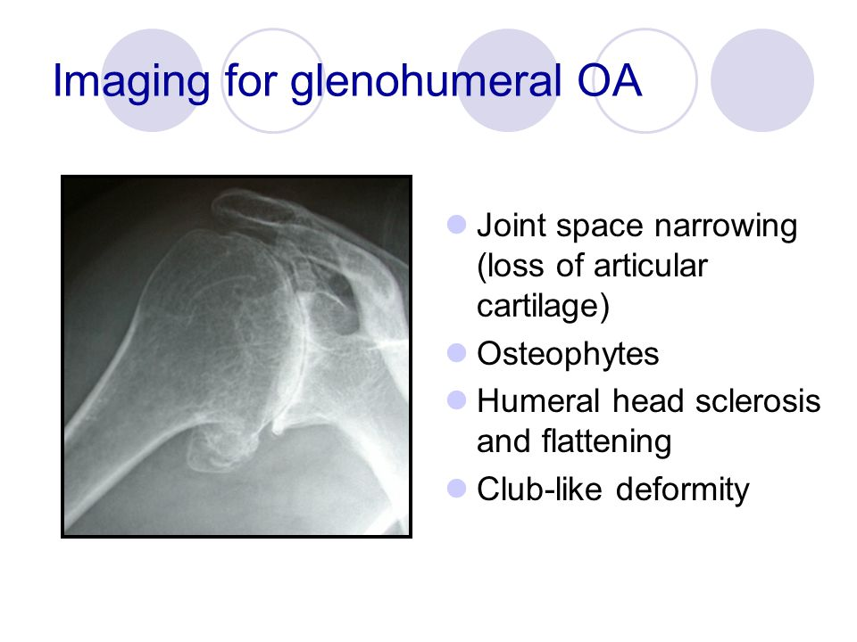 Imaging for glenohumeral OA