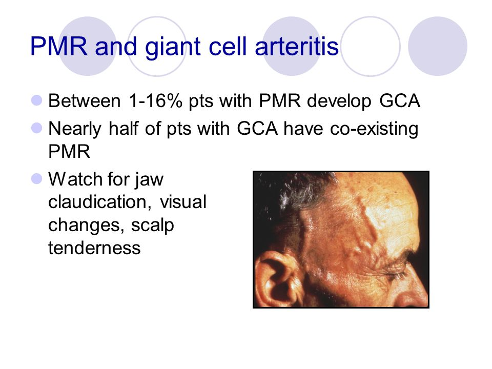 PMR and giant cell arteritis