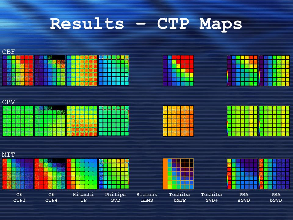 Results – CTP Maps CBF CBV MTT GE CTP3 GE CTP4 Hitachi IF Philips SVD