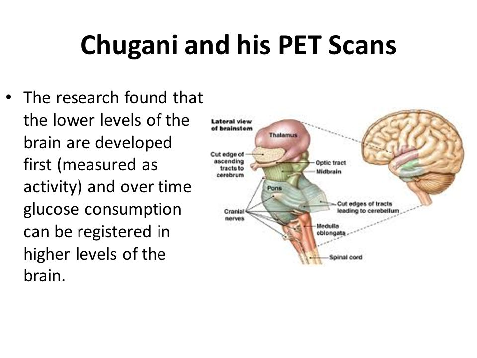 Chugani and his PET Scans