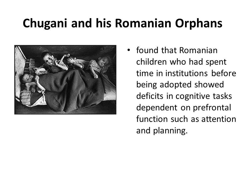 Chugani and his Romanian Orphans
