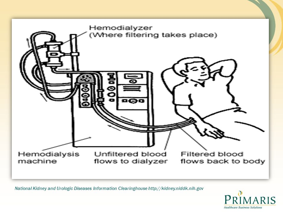 This diagram explains how the blood leaves the pt enter the dialysis machine goes through the filter (dialyzer) and then back to the patient. You can see the two tubes one takes blood away from the pt to machine and the other brings blood back to the pt.