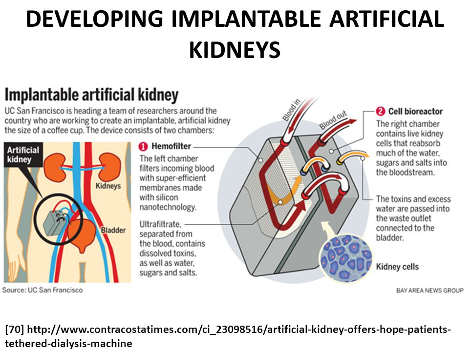 DEVELOPING IMPLANTABLE ARTIFICIAL KIDNEYS
