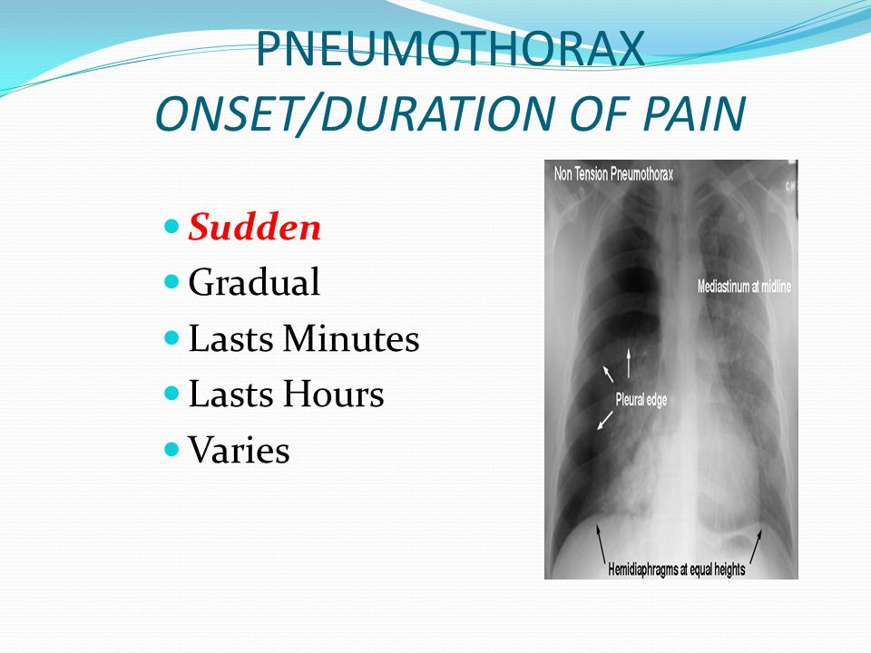 PNEUMOTHORAX ONSET/DURATION OF PAIN