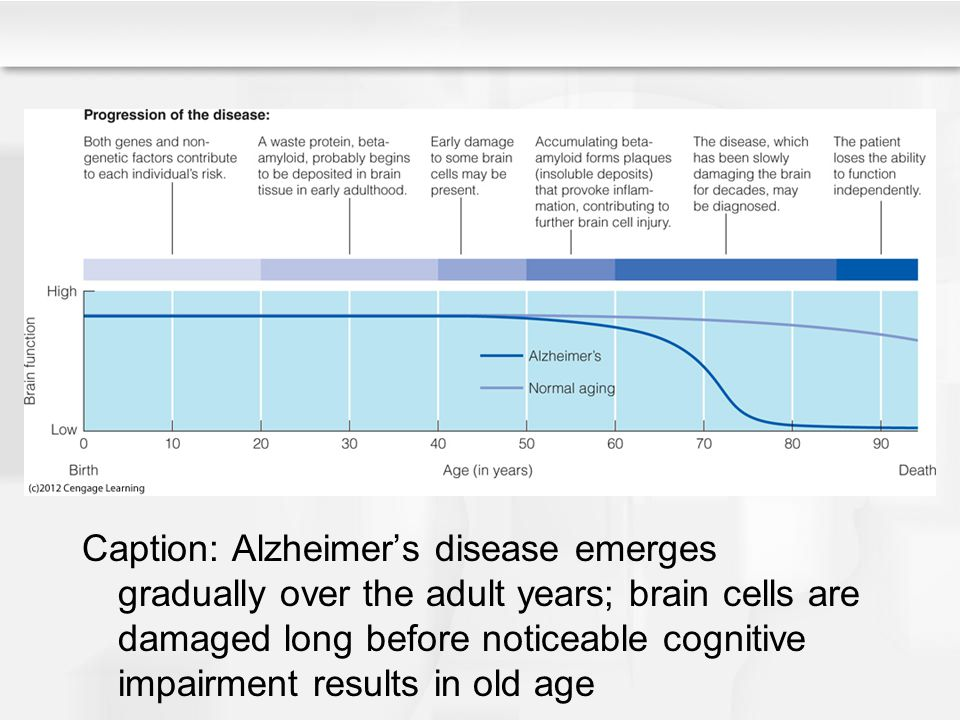 Caption: Alzheimer's disease emerges gradually over the adult years; brain cells are damaged long before noticeable cognitive impairment results in old age