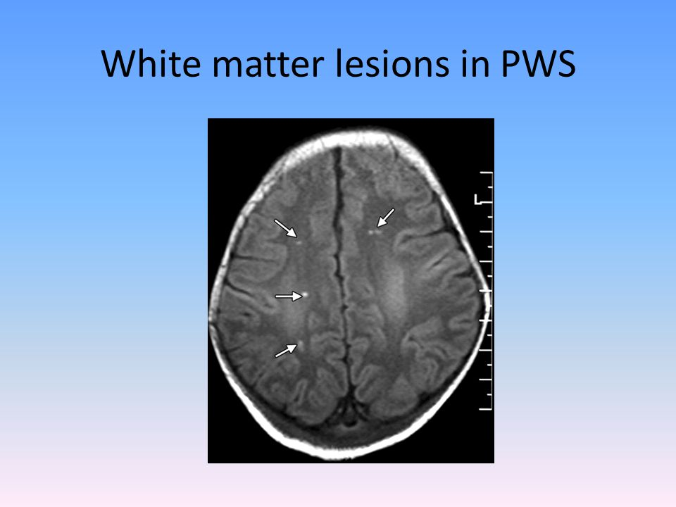White matter lesions in PWS