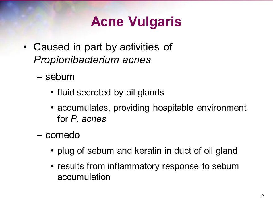 Acne Vulgaris Caused in part by activities of Propionibacterium acnes