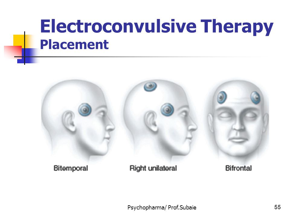 Electroconvulsive Therapy Placement