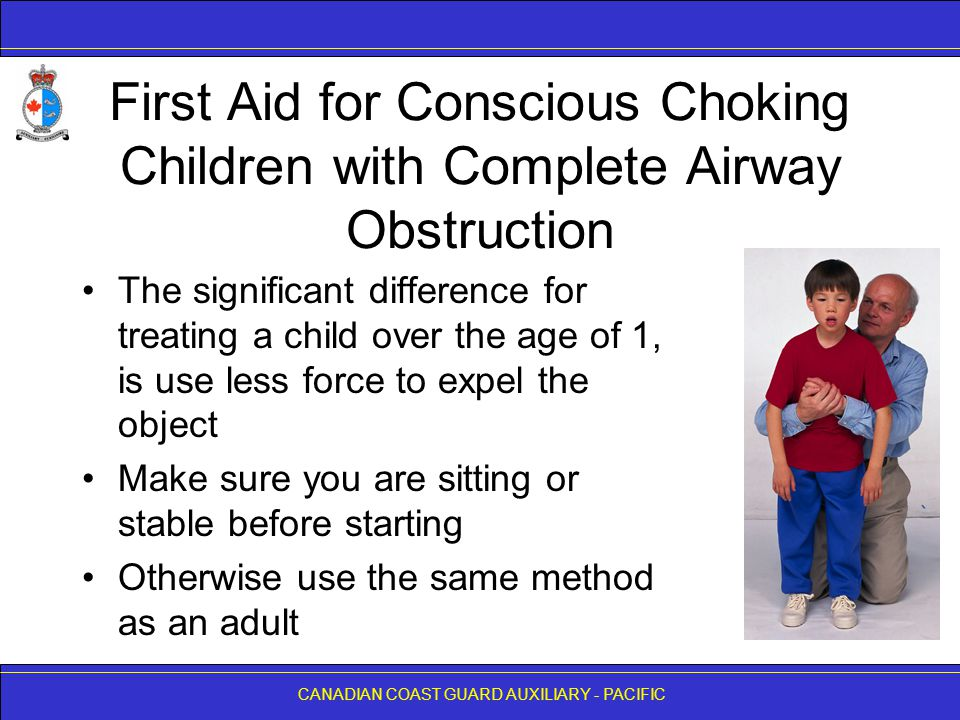 First Aid for Conscious Choking Children with Complete Airway Obstruction