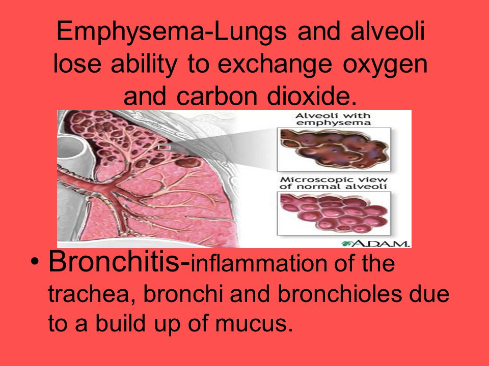 Emphysema-Lungs and alveoli lose ability to exchange oxygen and carbon dioxide.