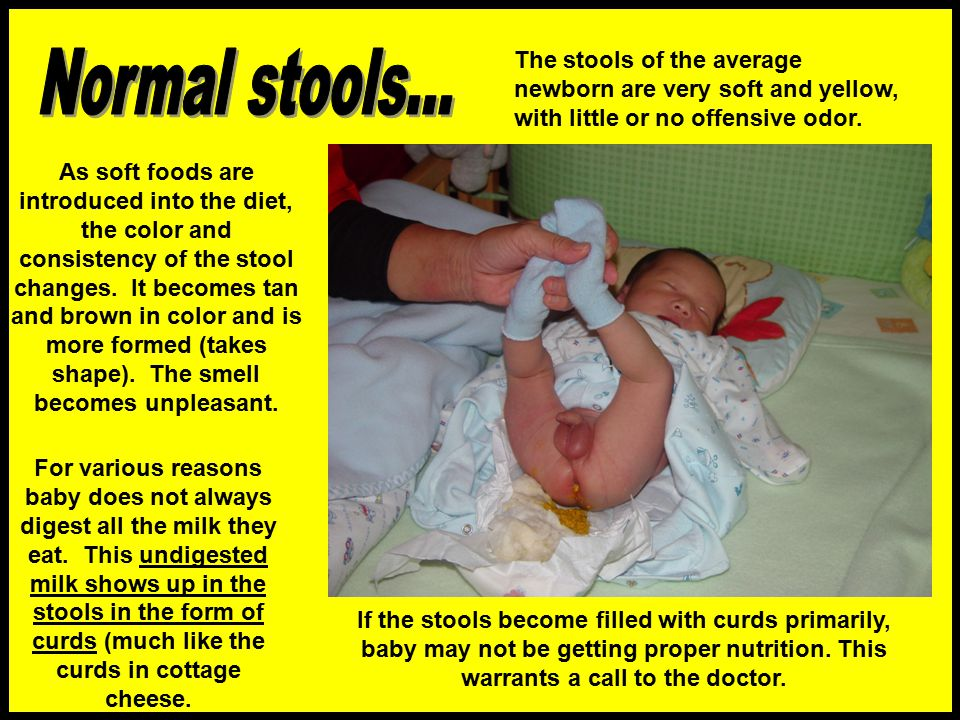 The stools of the average newborn are very soft and yellow, with little or no offensive odor.