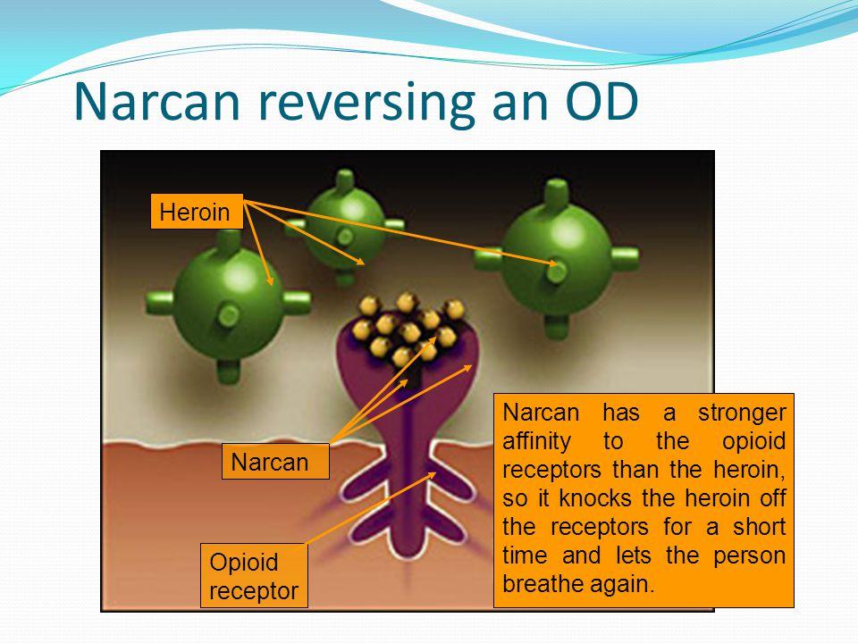 Narcan reversing an OD Heroin