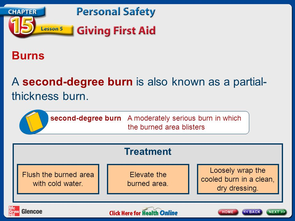 A second-degree burn is also known as a partial- thickness burn.