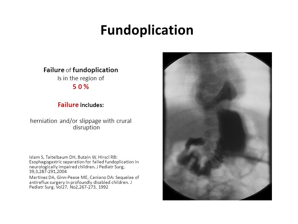 Fundoplication Failure of fundoplication 5 0 % Failure includes: