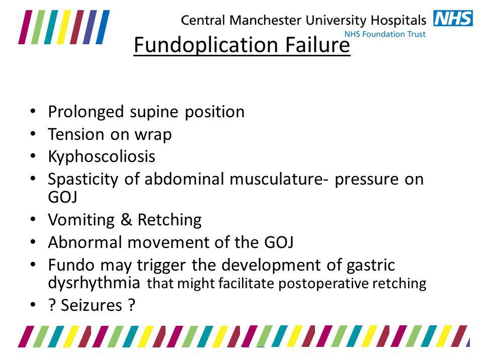 Fundoplication Failure