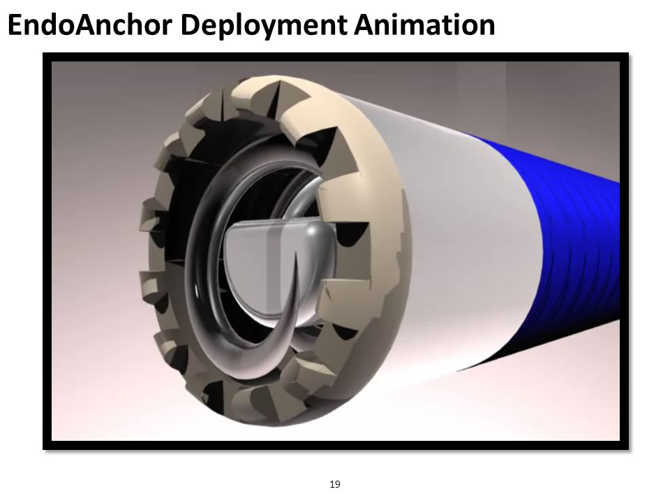 EndoAnchor Deployment Animation