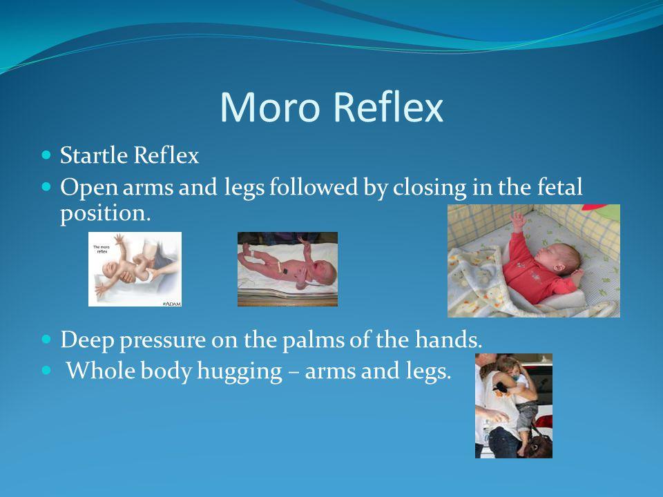 Moro Reflex Startle Reflex