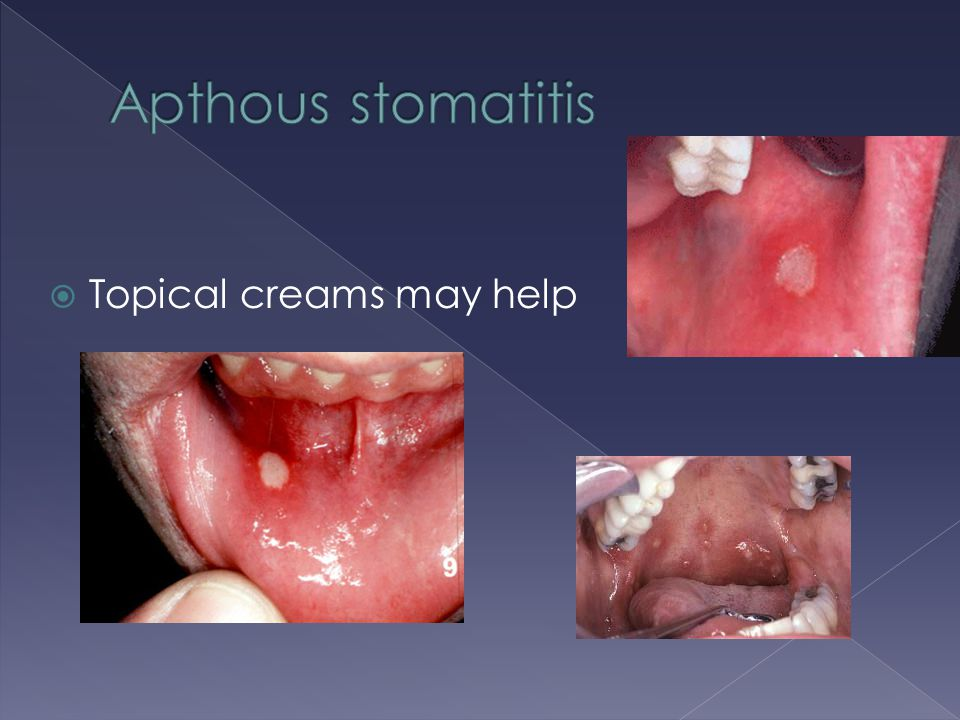 Apthous stomatitis Topical creams may help