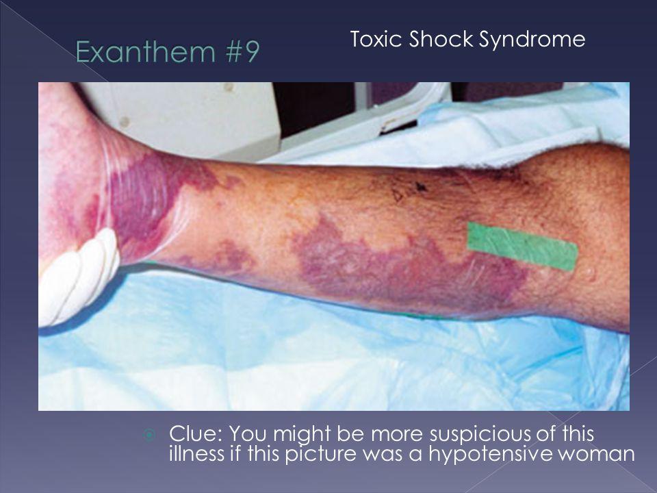 Exanthem #9 Toxic Shock Syndrome