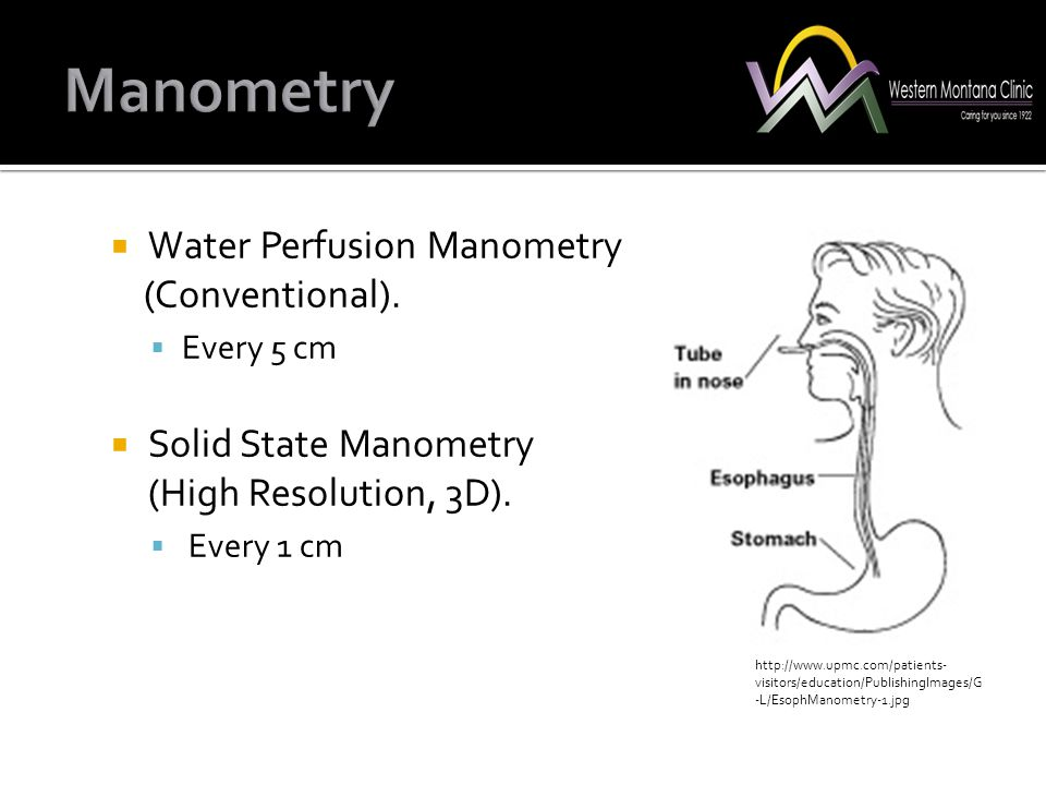 Manometry Water Perfusion Manometry (Conventional).