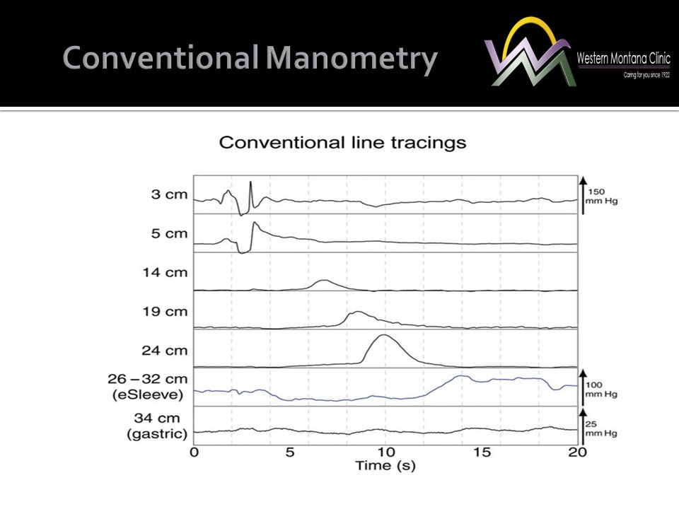 Conventional Manometry